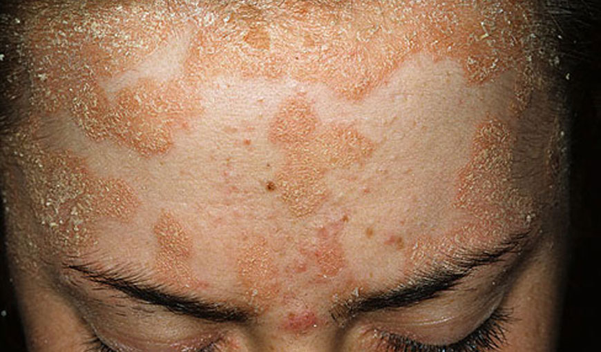 Homeopathy Skin Treatment Hyderabad - Homeopathic Medicine