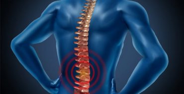 homeopathy Spondylitis treatment