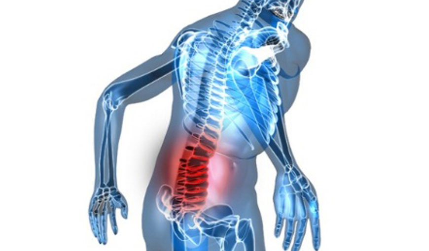 Spondylitis Treatment in Homeopathy